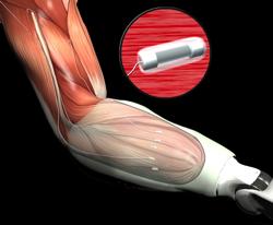 darpa-biotech-arm-image