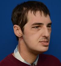 lee-richard-face-transplant