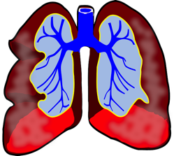 Lungs 39981 640